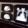 Hospital Regional Comienza Proceso de Modernización de la Unidad de Imagenología