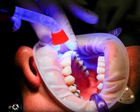 Problemas Odontológicos, la Nueva Enfermedad Crónica en Chile