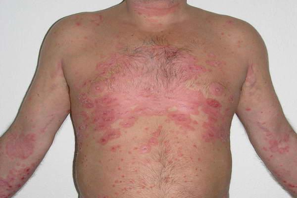 La psoriasis de la piel que curar