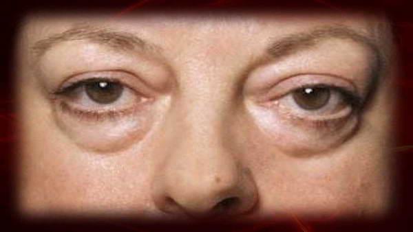 El caolín para la persona de las arrugas